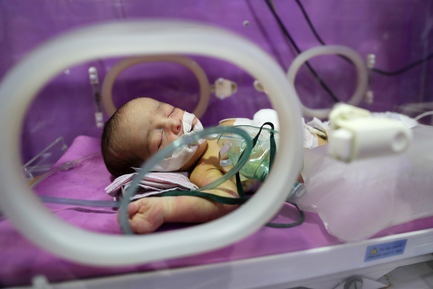 An unnamed child with a rare congenital birth defect called esophageal atresia is seen in Damascus Countryside Specialized Hospital in Douma, Syria, Oct. 11, 2017.