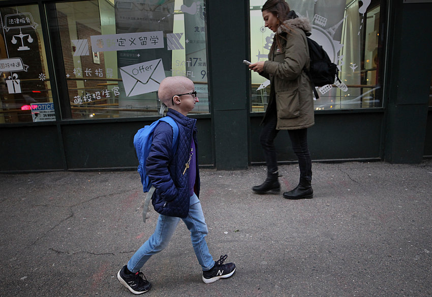 Boston MA., 02/12/2019, Meghan Waldron is a freshman at Emerson College with progeria, one of the world's rarest diseases. It causes premature aging and typically kills kids by the age of 14. She's almost 19, and she credits lonafarnib, an experimental drug she's been taking since 2007 as part of a clinical trial at Boston Children's Hospital. The drug is expected to win approval later this year.....Suzanne Kreiter/Globe staff.