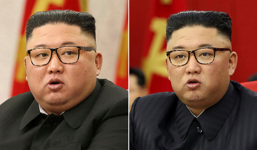 """FILE - This combination of file photos provided by the North Korean government, shows North Korean leader Kim Jong Un at Workers' Party meetings in Pyongyang, North Korea, on Feb. 8, 2021, left, and June 15, 2021. North Korean state TV has cited an unidentified resident as saying that citizens are heartbroken because of leader Kim's """"emaciated looks."""" The comments are a rare acknowledgement of outside speculation that Kim has recently lost a considerable about of weight. Independent journalists were not given access to cover the event depicted in this image distributed by the North Korean government. The content of this image is as provided and cannot be independently verified. (Korean Central News Agency/Korea News Service via AP, File)"""