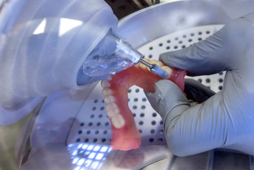 """FILE - In this June 13, 2019, file photo a dentist smooths out the edges of new 3D printed dentures in Huntsville, Texas. Dental work for Medicare recipients. An end to sky's-the-limit pricing on prescription drugs. Coverage for low-income people locked out of Medicaid because of political battles. Those are just some of the changes to health care that Democrats want to achieve with President Joe Biden's massive """"Build Back Better"""" plan. (Brett Coomer/Houston Chronicle via AP, File)"""