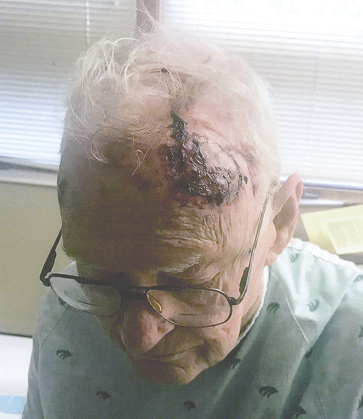Powell resident Lanny Heaney — pictured at Powell Valley Hospital on the night of Oct. 28 — suffered serious injuries to his head after falling into the Garland Canal east of town that afternoon.