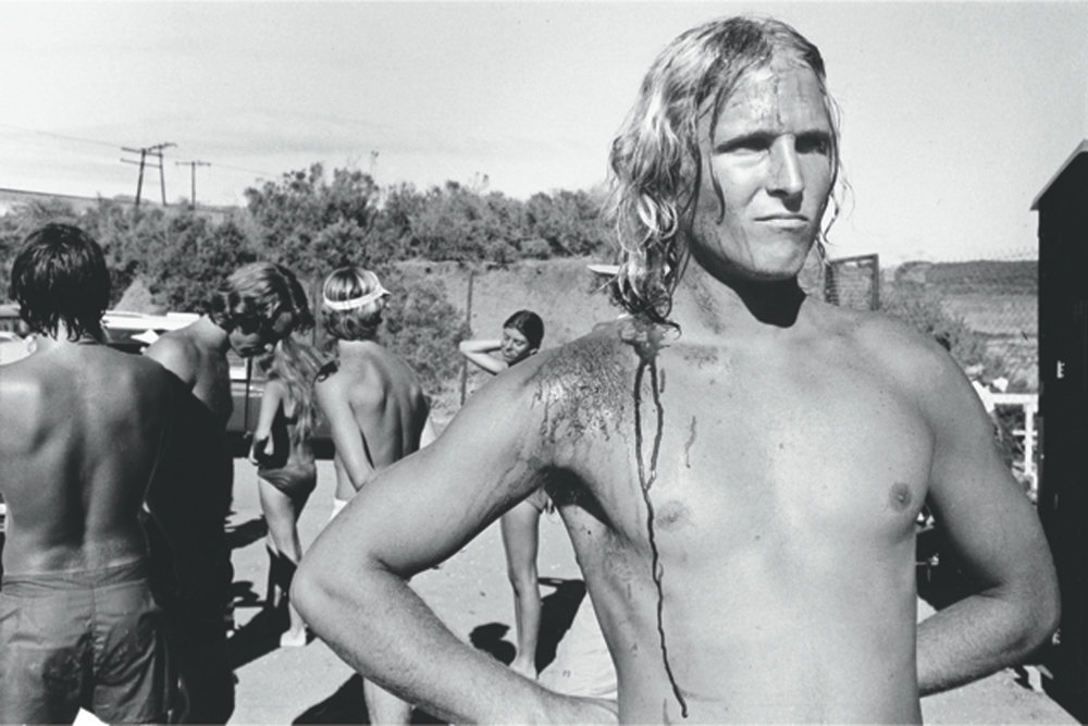 Anthony Friedkin photographed a bloodied surfer extra on the set of the film 'Big Wednesday' in Santa Barbara in the late 1970s.