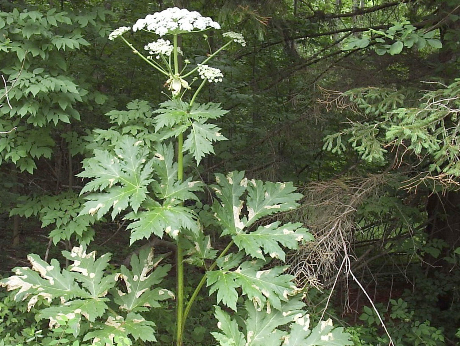 PROBLEM PLANT — Giant hogweed sap, when combined with sunlight, can cause serious burns and blisters and eventual scarring.