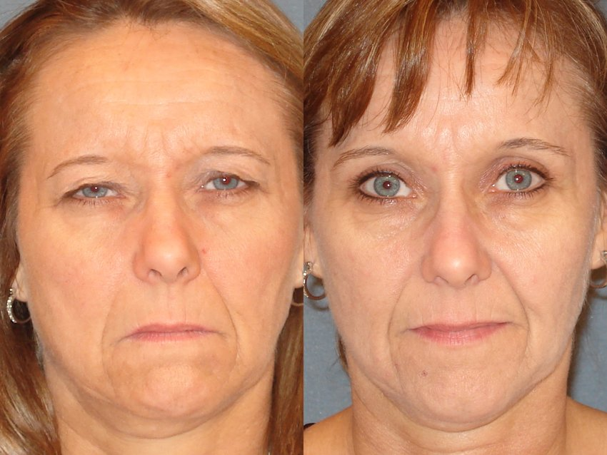 Results of an upper eyelid surgery, before on left, as performed by Arizona Eye Institute and Cosmetic Laser Center.
